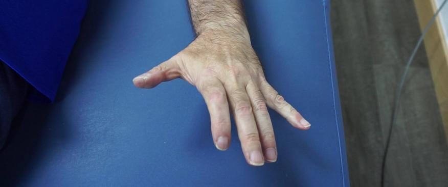 técnica dnhs en paciente de la asociacion de esclerosis múltiple