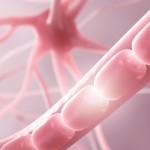 Región del cromosoma 13 como factor de riesgo de la esclerosis