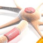 Un posible fármaco contra la esclerosis múltiple primaria progresiva (EMPP)