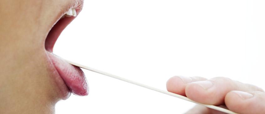 Investigadores diagnostican el parkinson a partir de un test de las glándulas salivales