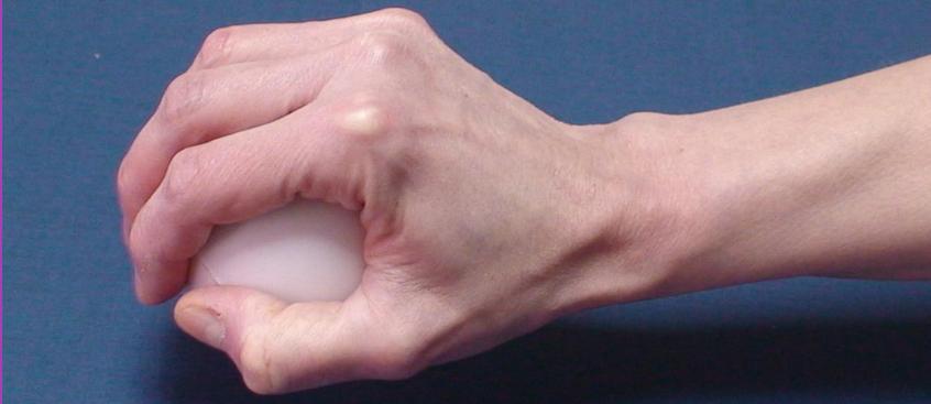 Ejercicios para trabajar la movilidad  de la mano y evitar retracciones