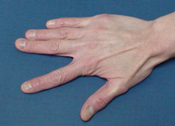 Ejercicio para trabajar la mano ejercicio2 Ejercicio para trabajar la mano