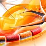 Expertos en Esclerosis Múltiple analizan el cambio en el tratamiento de la enfermedad