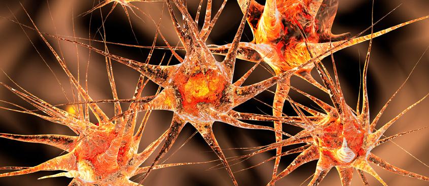 aumento de la Esclerosis Múltiple en mujeres jóvenes