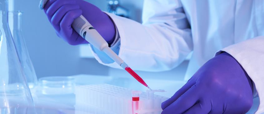 proteína que reduce muerte neuronal y esclerosis múltiple
