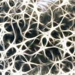¿Todas las Esclerosis Múltiples son iguales? Pronóstico en la Esclerosis Múltiple