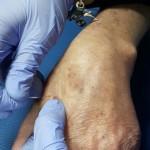 La técnica DNHS® se puede aplicar en Esclerosis Múltiple para disminuir la espasticidad