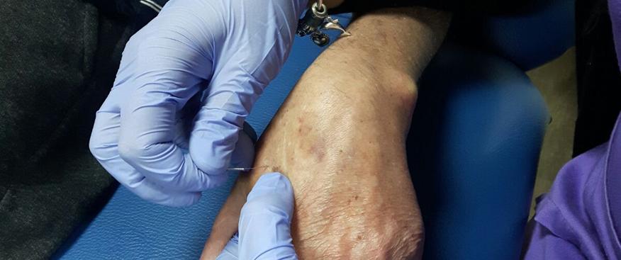 punción seca en paciente de la asociación de esclerosis múltiple