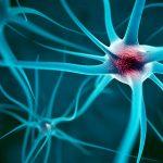 El trasplante de células madre puede ser una nueva esperanza para la esclerosis múltiple