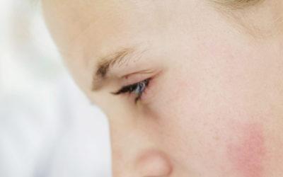Esclerosis Múltiple y problemas de la higiene del sueño por la COVID-19